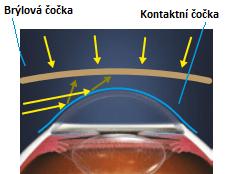 uv filtr na kontaktních čočkách a brýlích