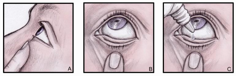 Jak správně kapat oční kapky