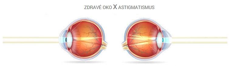Astigmatismus - vše co potřebujete vědět e1f3de5de98